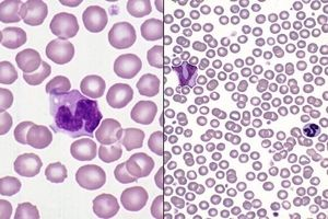 Haematology Case Studies